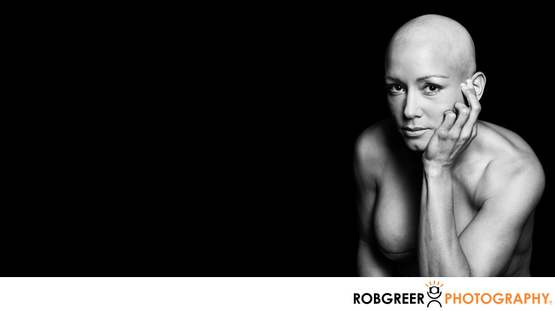 Powerful Survivor Photograph of Double Mastectomy