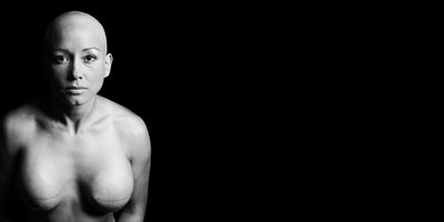 Fine Art Photograph of Double Mastectomy Scars
